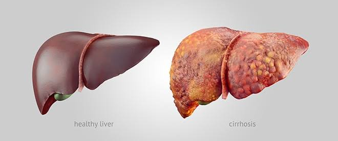 Your liver and you!