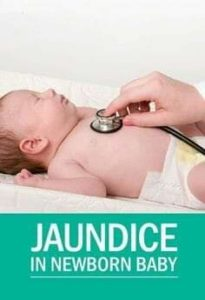 JAUNDICE IN NEONATES.